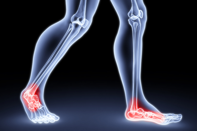 health-uses-for-Hyaluronic-acid-foot-joint-pain