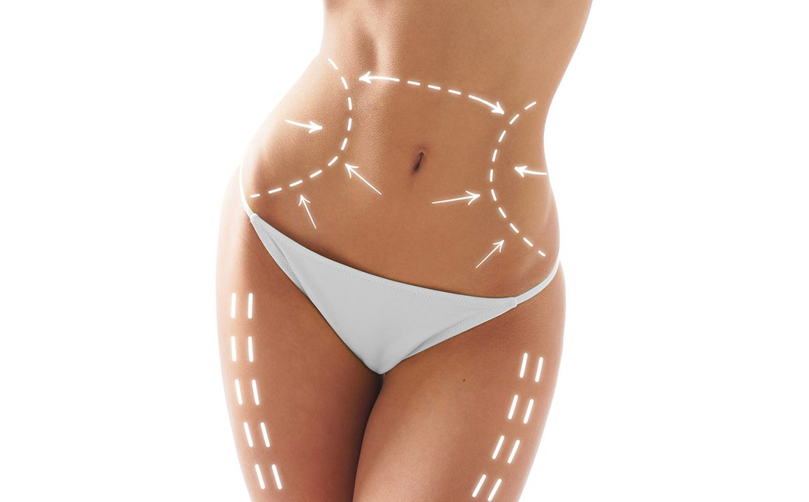 coolsculpting-lose-fat-weight-loss-fashionisers-main-image