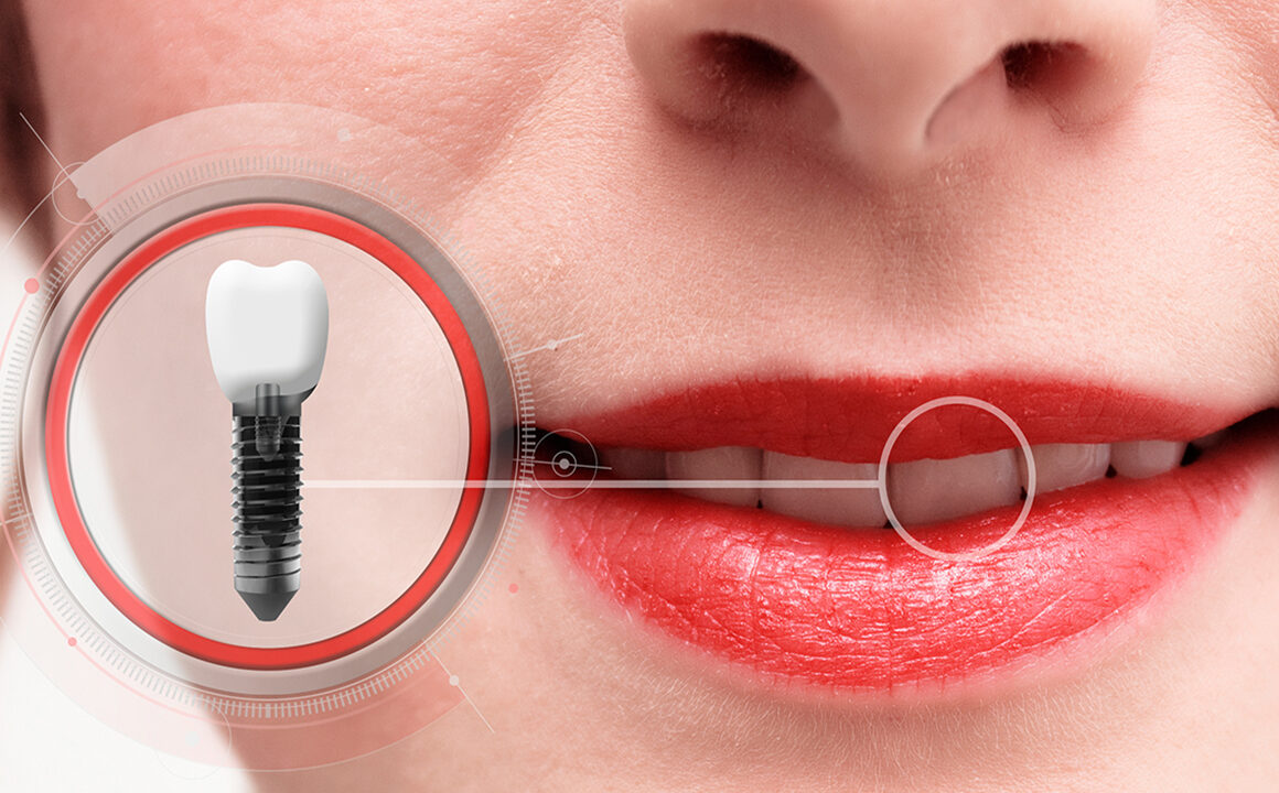 things-to-consider-before-getting-dental-implants-main-image-implants-dentist-teeth-2
