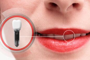 things-to-consider-before-getting-dental-implants-main-image-implants-dentist-teeth-2