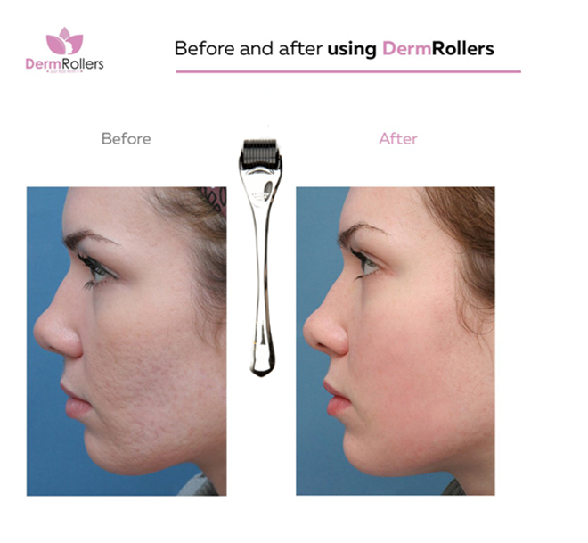 before-and-after-derm-rollers-photo-skincare