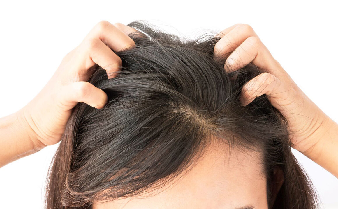scalp-conditions-that-may-cause-itchiness-woman-scratching-head