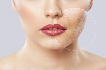 natural-remedies-to-manage-eczema-skin-issuesmain